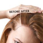 Haarausfall bei Frauen - Was hilft wirklich?