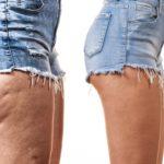 6 Anti Cellulite Hausmittel die wirklich funktionieren